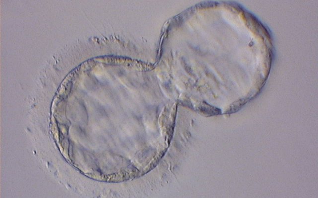 Hatching_Blastocyst
